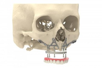 CADskills' jaw implant ready for 3D printing